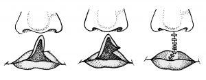 आ. २. खंडौष्ठावरील शस्त्रक्रियेचा एक प्रकार